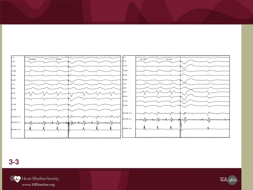 Premature stimuli were introduced from the RV apex, and the following tracings were obtained: