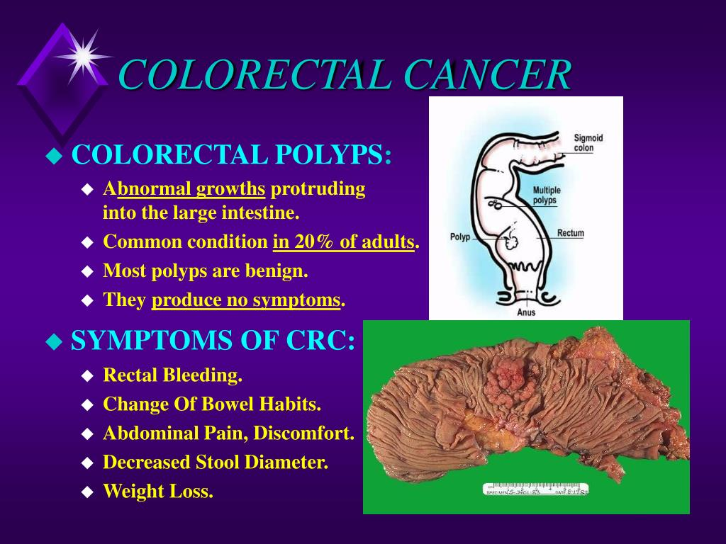 PPT - COLORECTAL CANCER PowerPoint Presentation - ID:563571