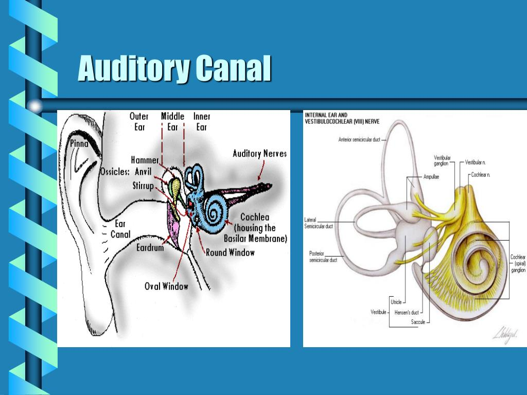 Ppt Cranial Nerve Lesion Acoustic Neuroma Powerpoint