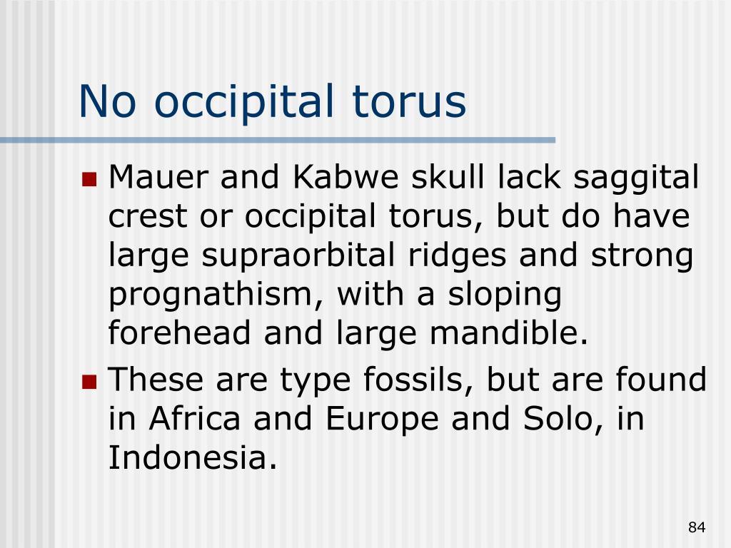 No occipital torus