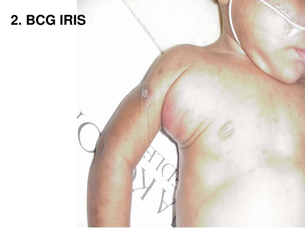 Acute suppurative adenitis 3 weeks after HAART and antituberculosis therapy (BCG IRIS)