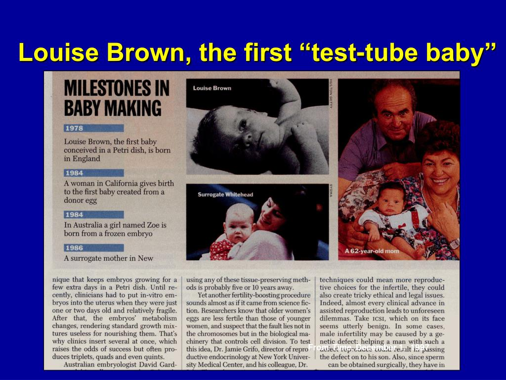 """Louise Brown, the first """"test-tube baby"""""""