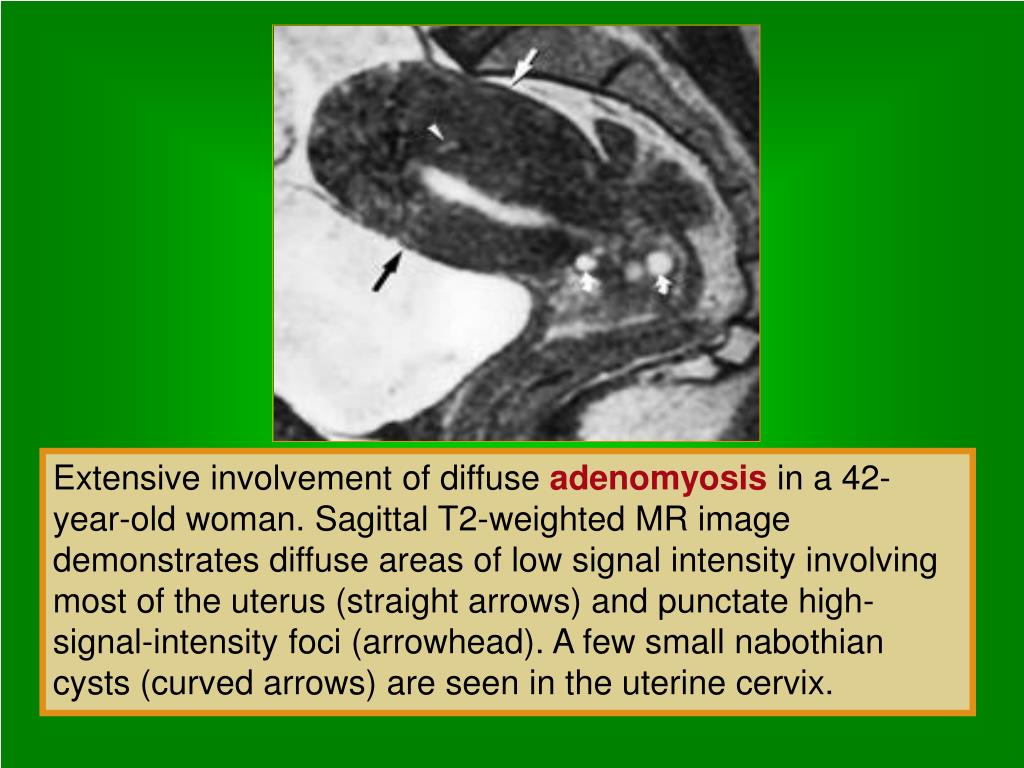 Extensive involvement of diffuse