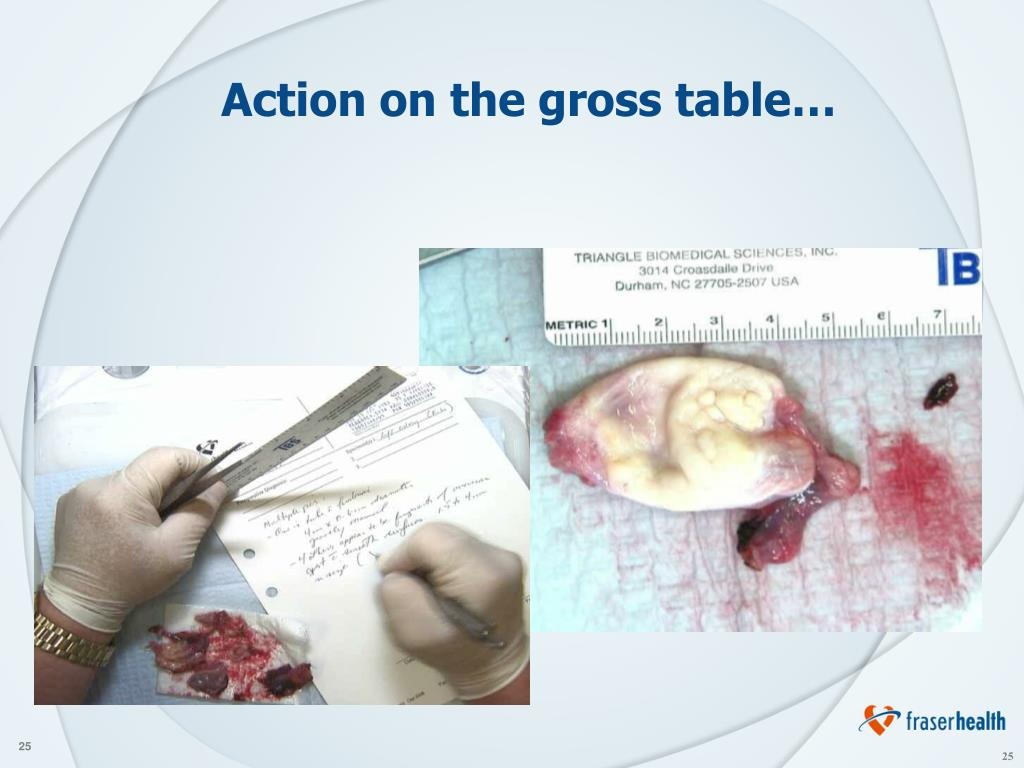 Action on the gross table…