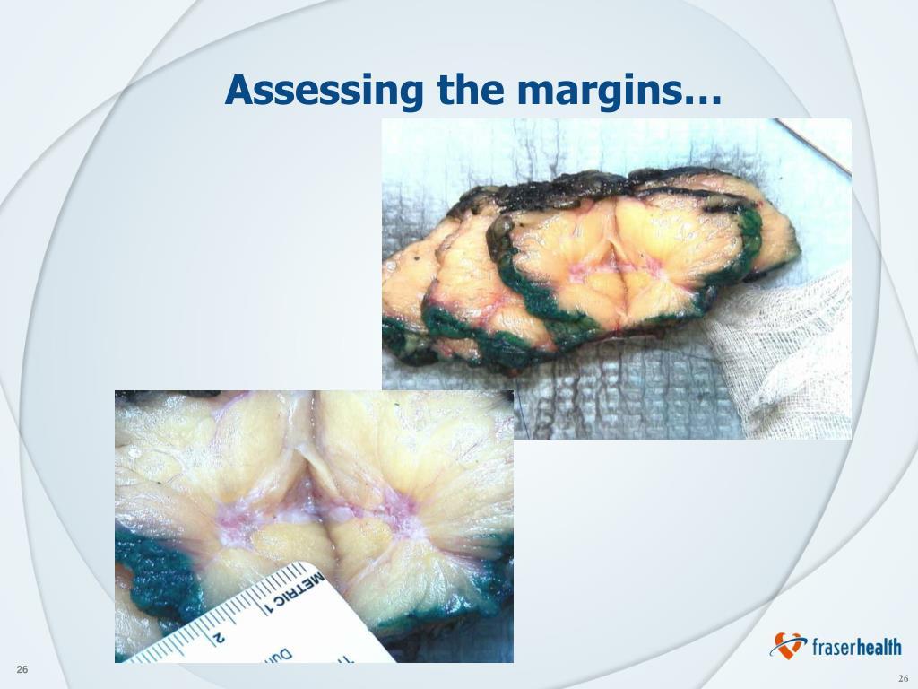 Assessing the margins…