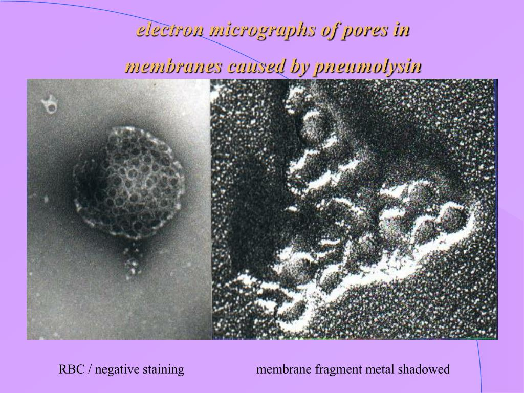 electron micrographs of pores in
