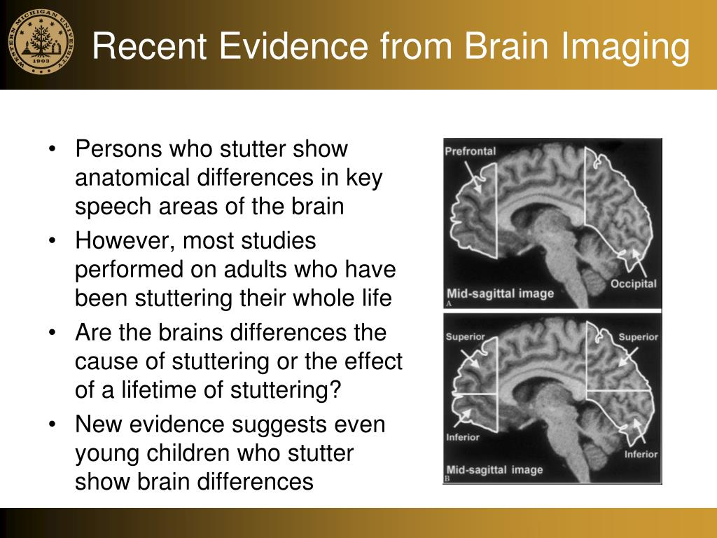Recent Evidence from Brain Imaging