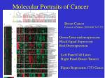 molecular portraits of cancer
