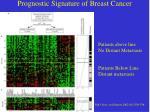 prognostic signature of breast cancer