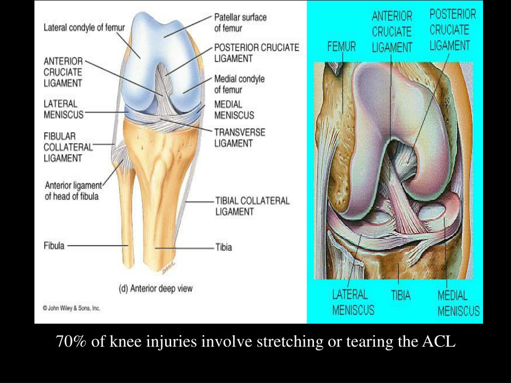 70% of knee injuries involve stretching or tearing the