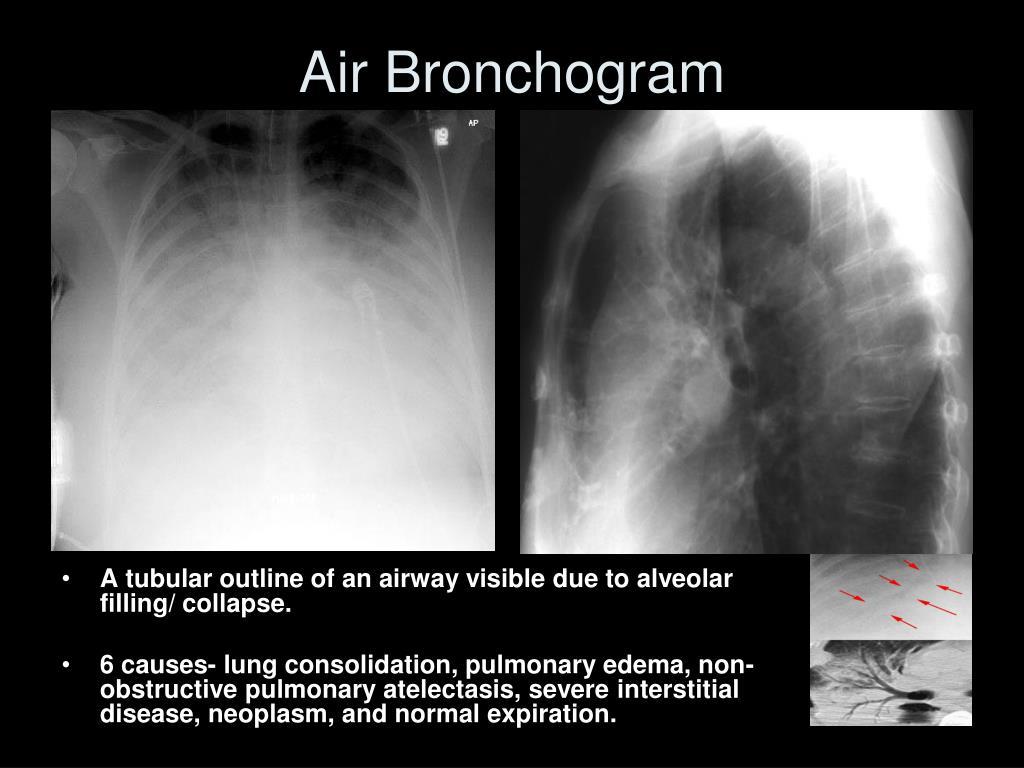 Air Bronchogram