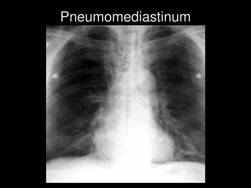 Pneumomediastinum