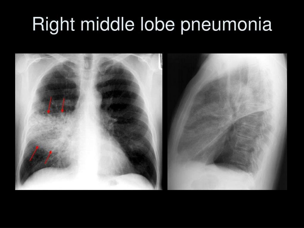 Right middle lobe pneumonia