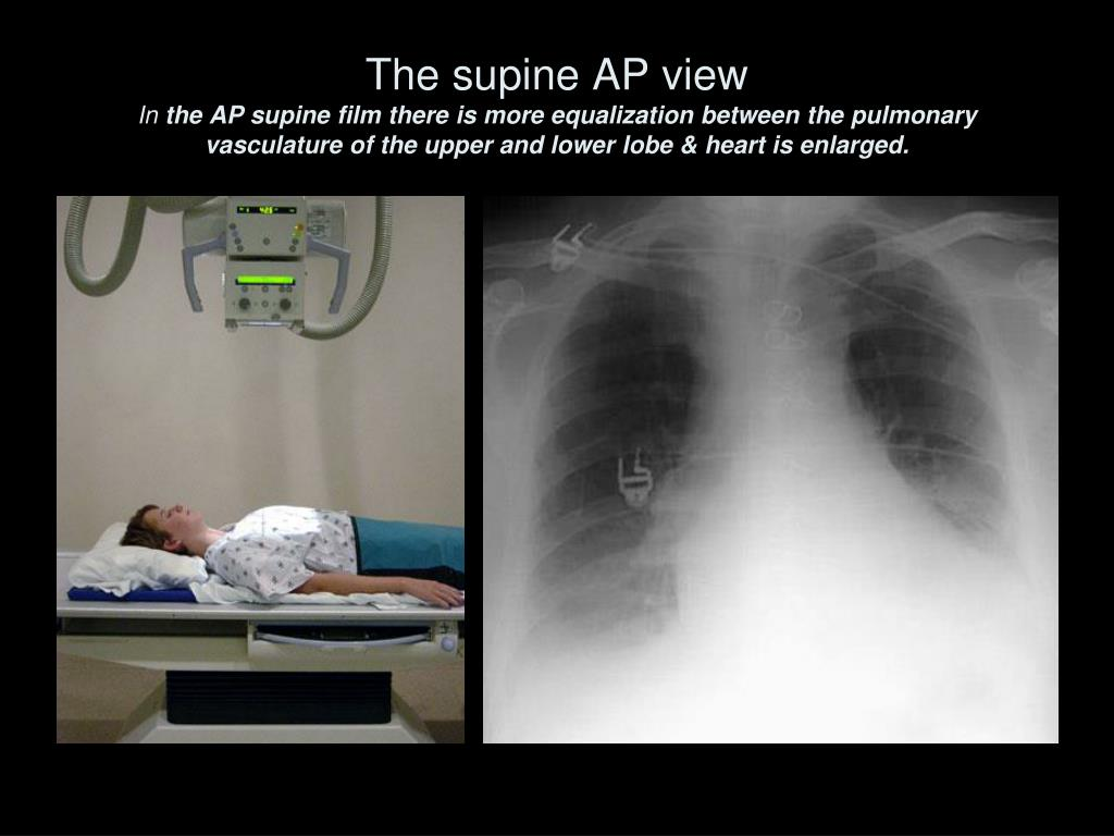The supine AP view