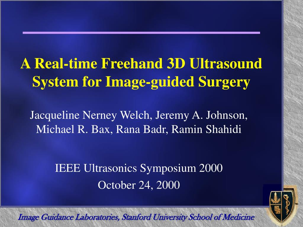 a real time freehand 3d ultrasound system for image guided surgery l.