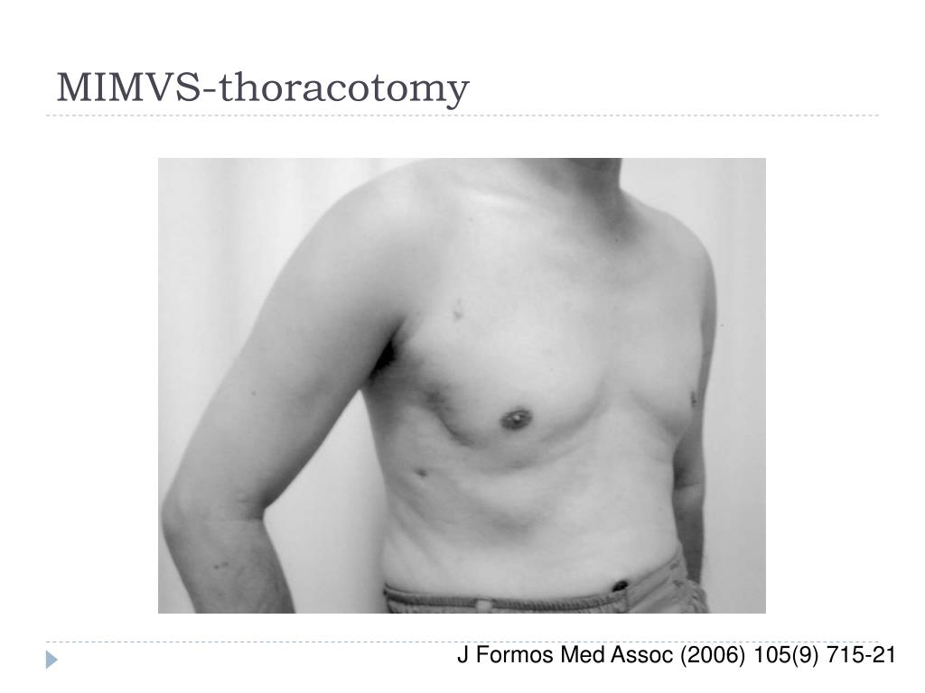 MIMVS-thoracotomy
