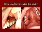 kshv infection involving oral cavity