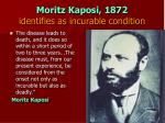 moritz kaposi 1872 identifies as incurable condition