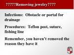 removing jewelry