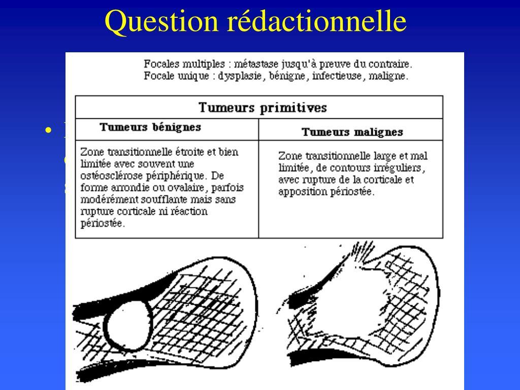 question r dactionnelle l.