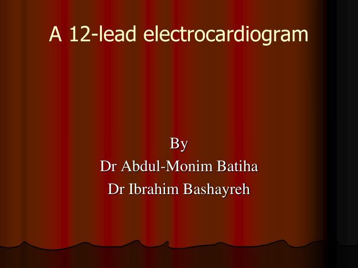a 12 lead electrocardiogram n.