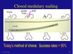 closed medulary nailing