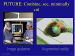 future combine see minimally cut