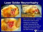laser solder neurorrhaphy