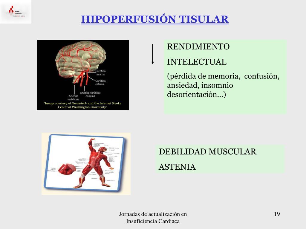 HIPOPERFUSIÓN TISULAR