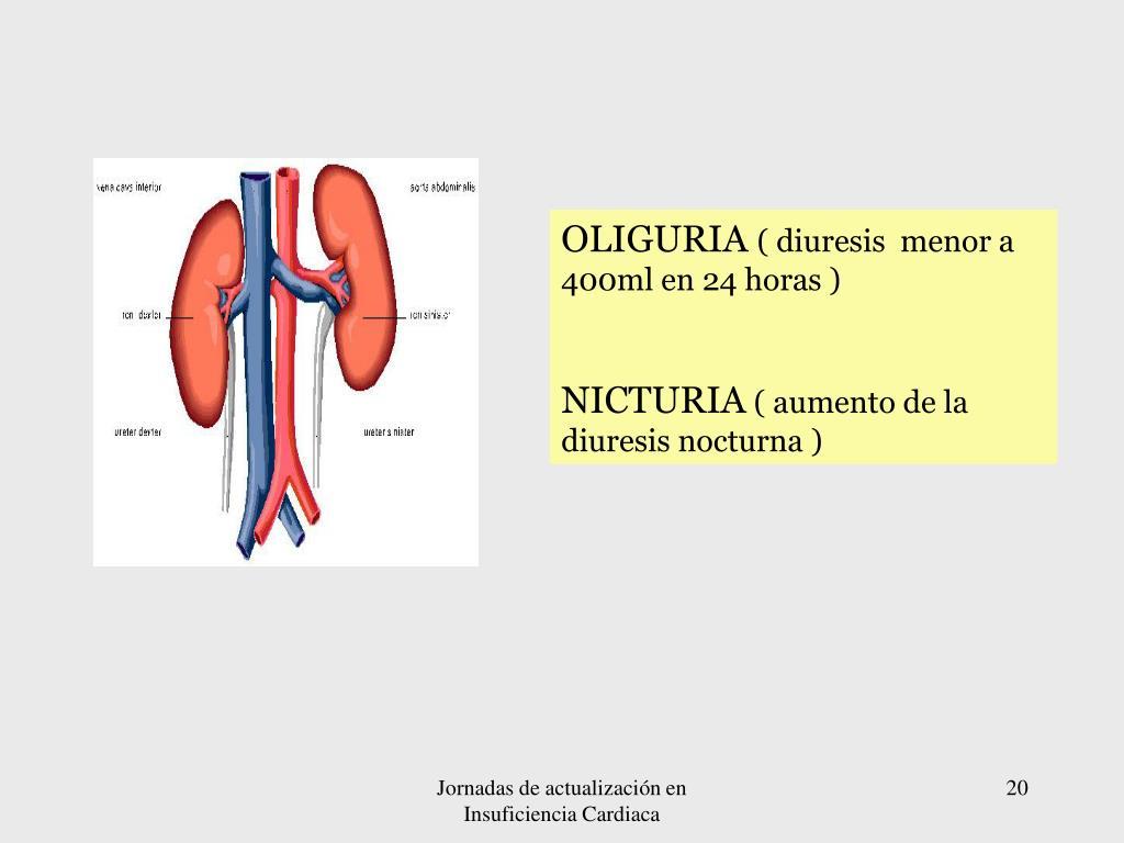 OLIGURIA