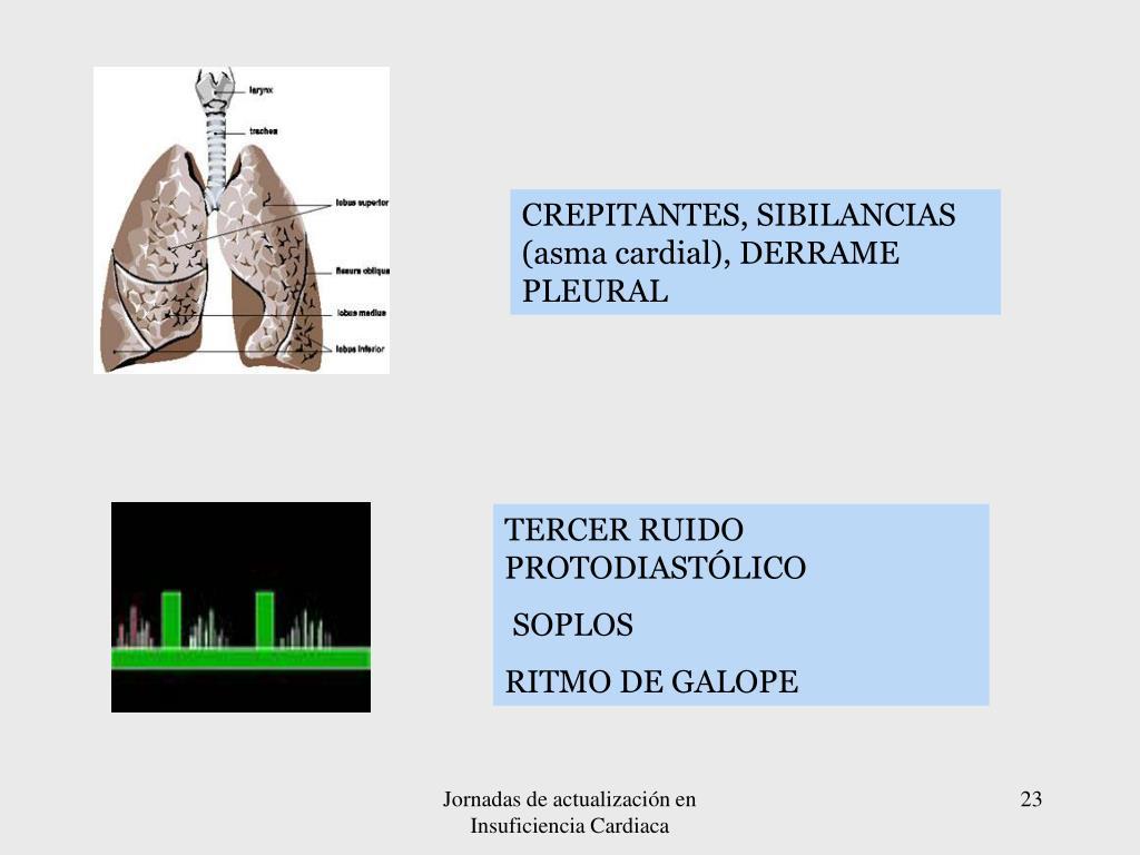 CREPITANTES, SIBILANCIAS (asma cardial), DERRAME PLEURAL