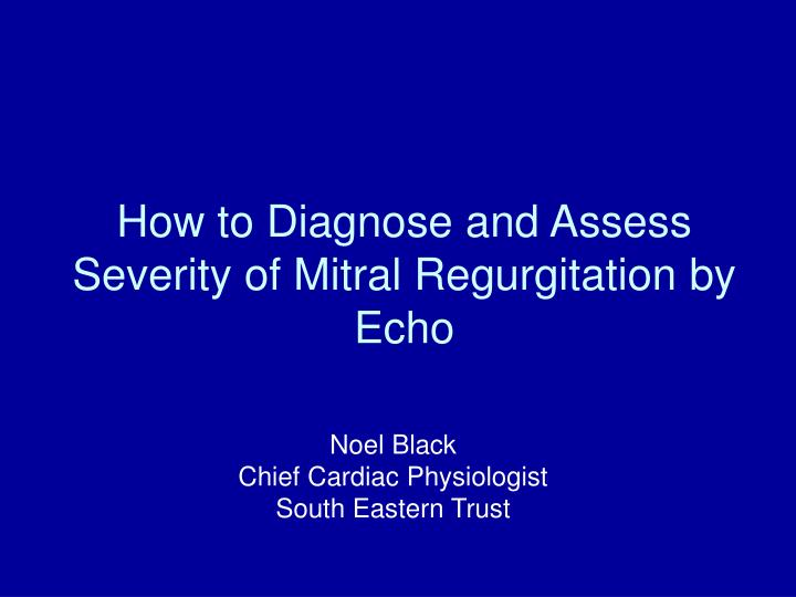 how to diagnose and assess severity of mitral regurgitation by echo n.