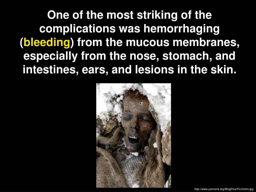 One of the most striking of the complications was hemorrhaging (