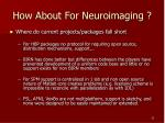 how about for neuroimaging