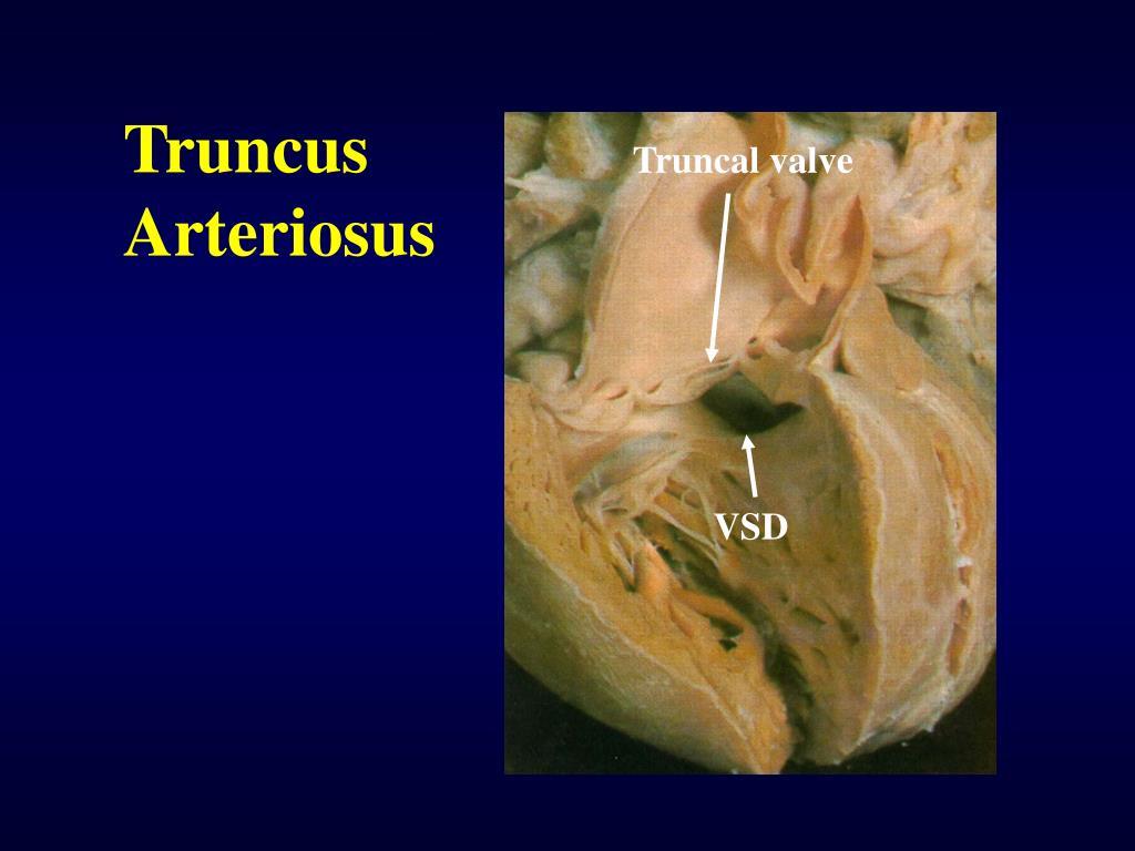 Truncus   Arteriosus