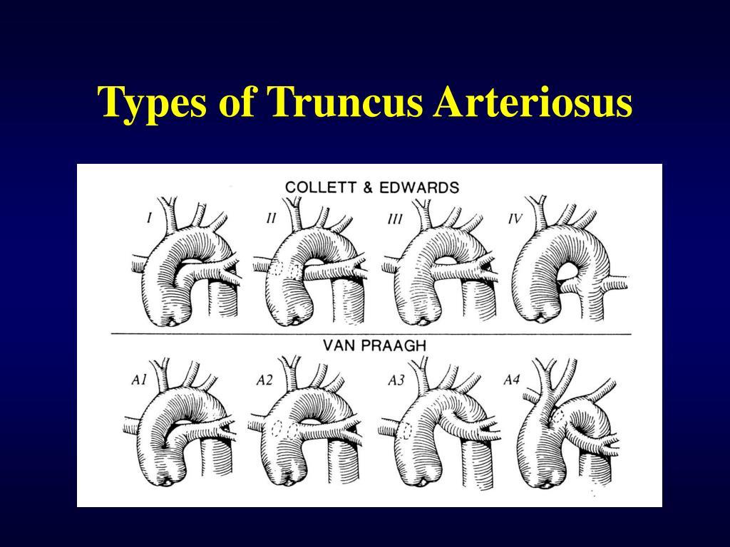 Types of Truncus Arteriosus