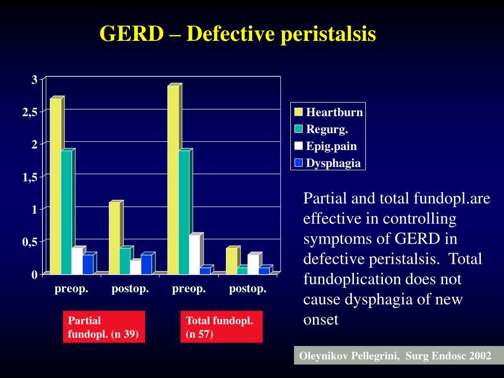 GERD – Defective peristalsis