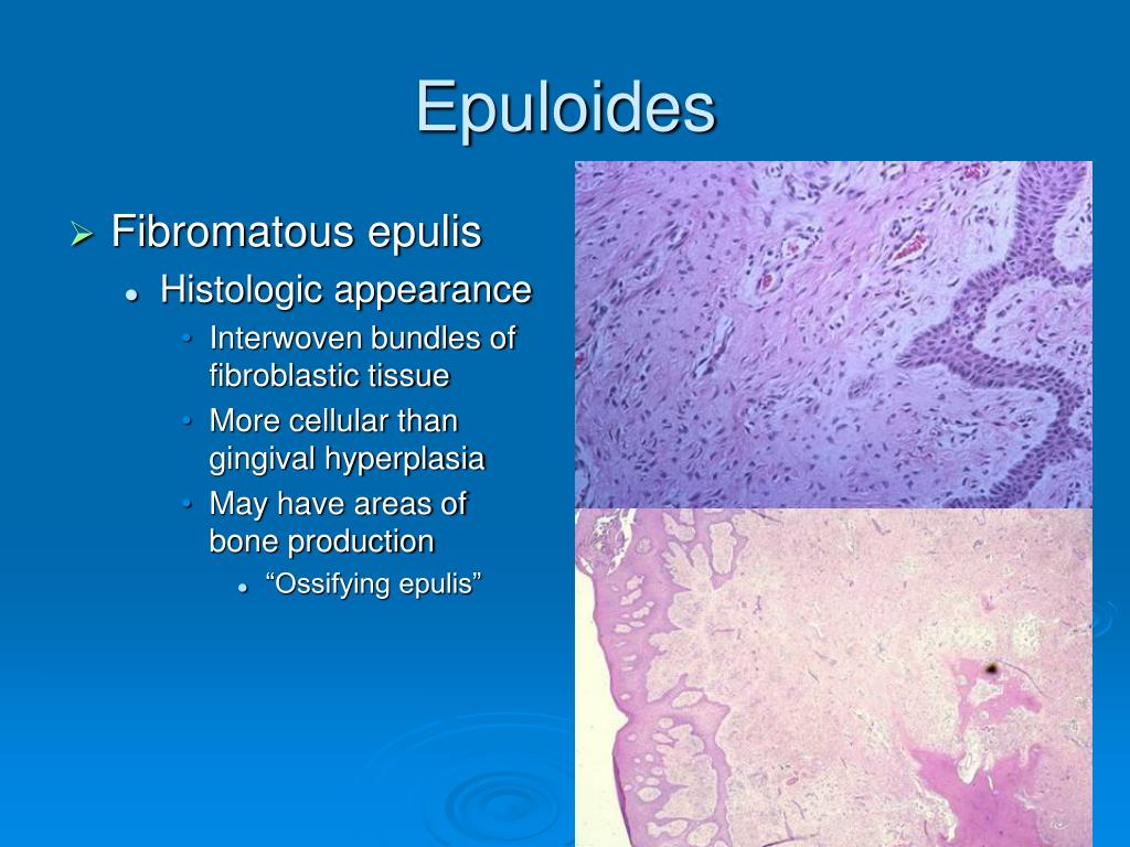 Epuloides