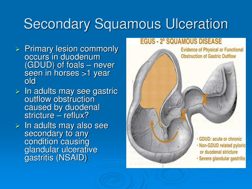 Secondary Squamous Ulceration