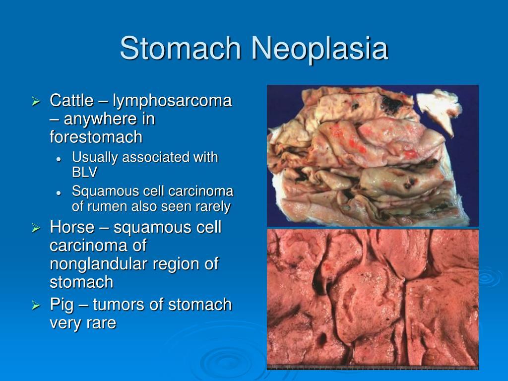 Stomach Neoplasia