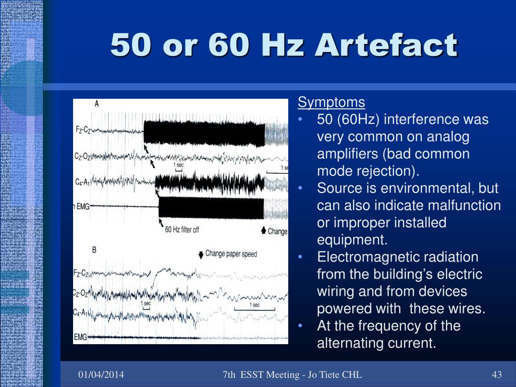50 or 60 Hz Artefact