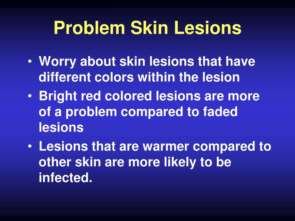 Problem Skin Lesions