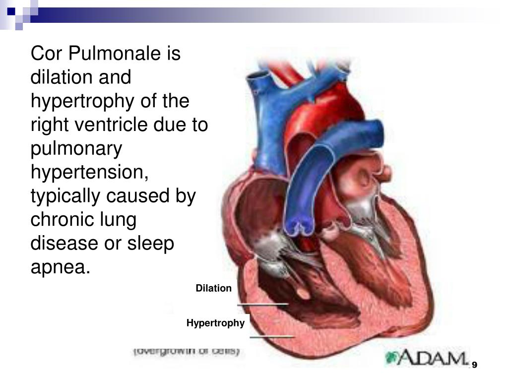 Cor Pulmonale is dilation and hypertrophy of the right ventricle due to pulmonary hypertension, typically caused by chronic lung disease or sleep apnea.