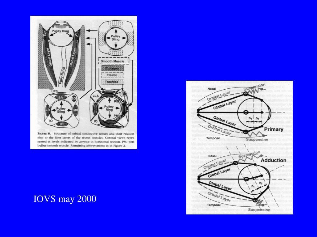 IOVS may 2000