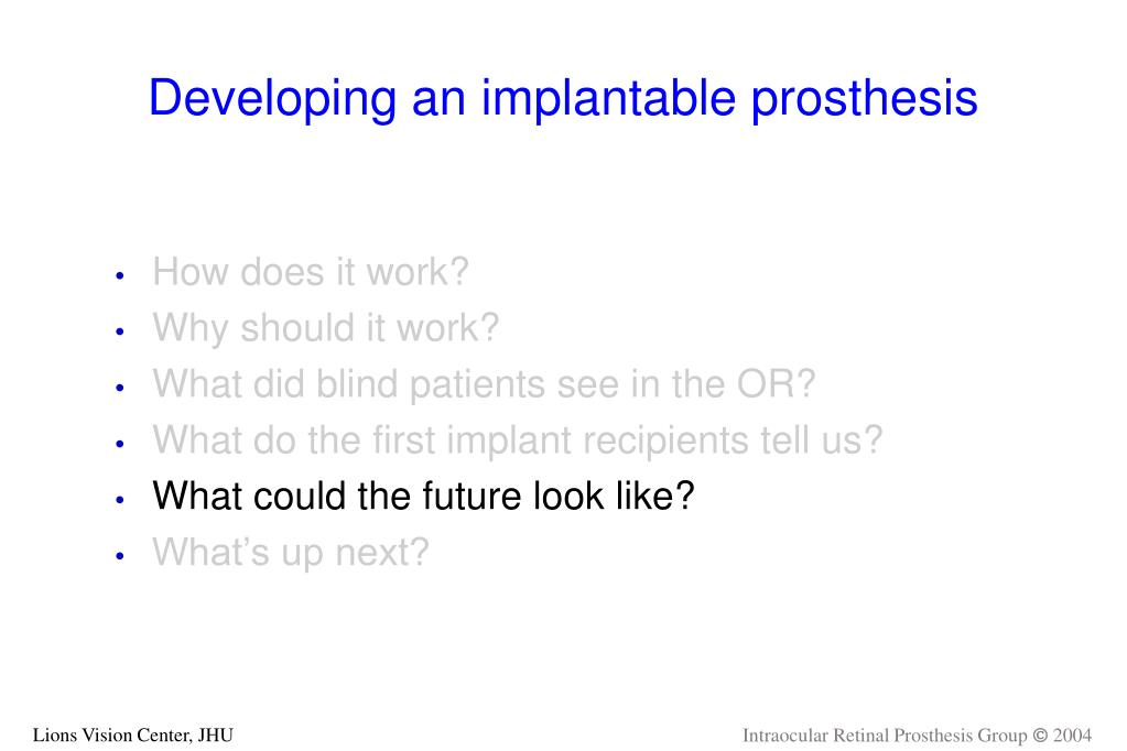 Developing an implantable prosthesis