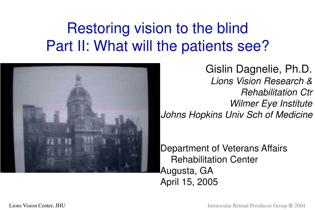 restoring vision to the blind part ii what will the patients see l.