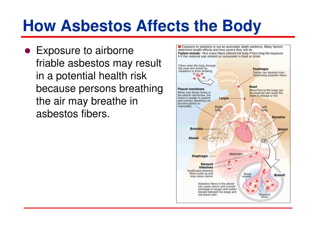 How Asbestos Affects the Body