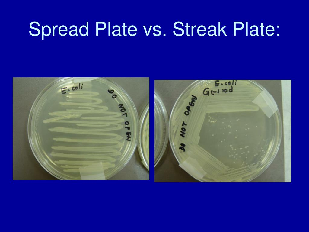 Spread Plate vs. Streak Plate: