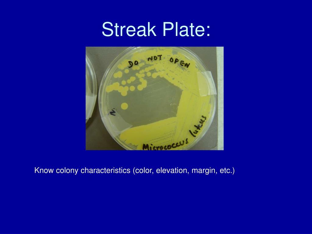 Streak Plate: