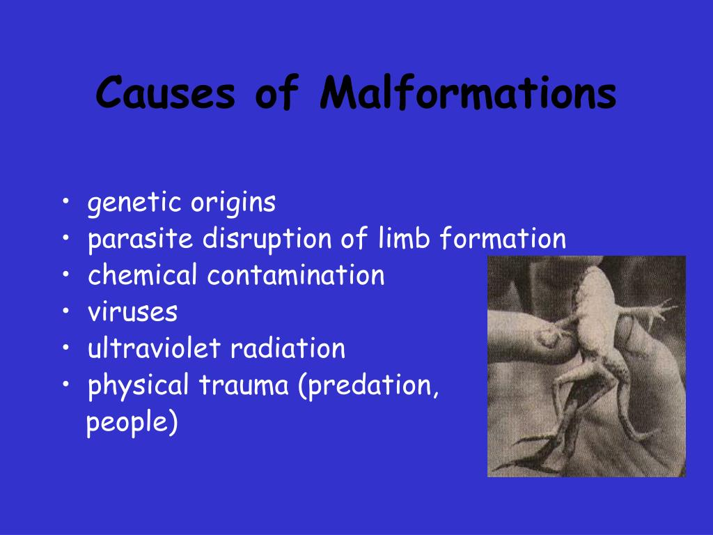 Causes of Malformations